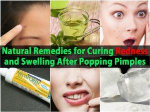 Natürliche Heilmittel für die Heilung von Rötung und Schwellung nach Pickel Popping