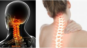 Nackenschmerzen Behandlung: Diese ungewöhnliche Dehnung entlastet steifen Hals in 90 Sekunden!