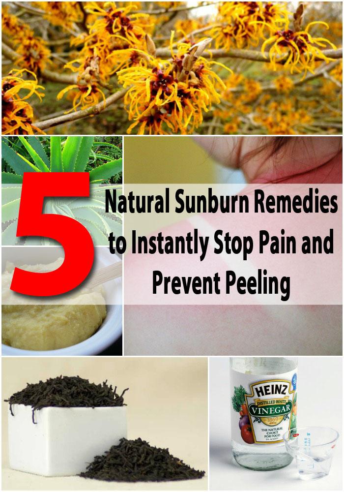 5 Natural Sunburn Remedies, um sofort zu stoppen Schmerzen und Peeling zu verhindern