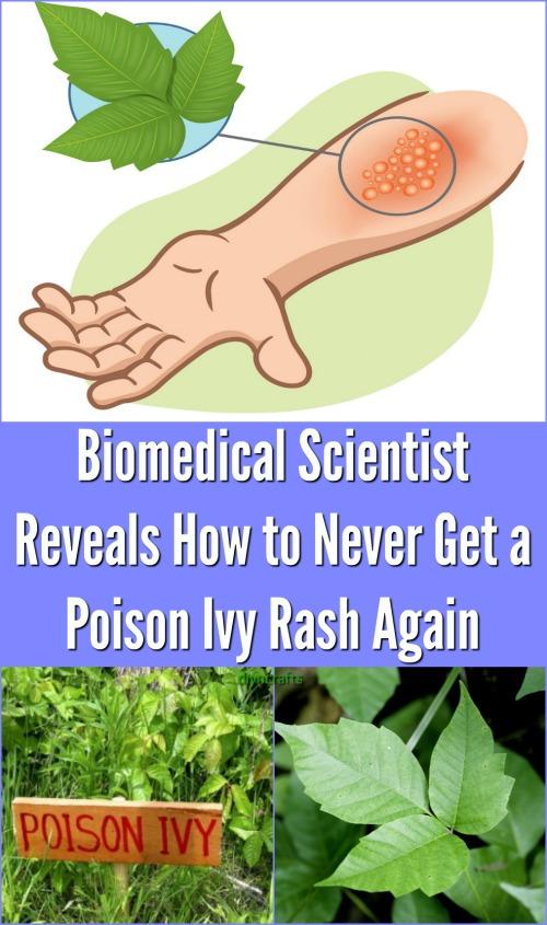 Biomedizinischer Wissenschaftler enthüllt, wie man nie wieder einen Poison Ivy Rash bekommt