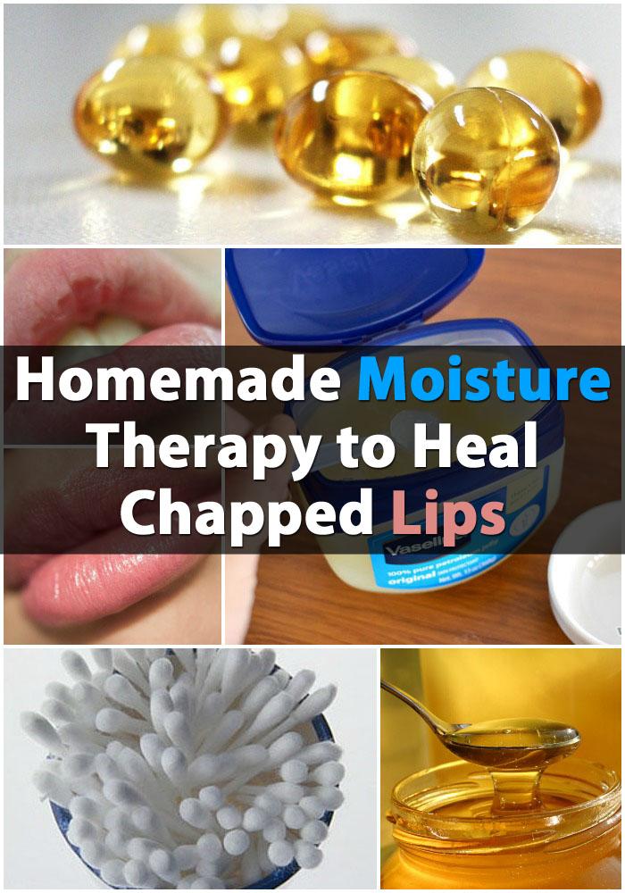 Selbst gemachte Moisture Therapy, um rissige Lippen zu heilen