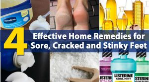 4 Effektive Home Remedies für Wunden, Cracked und Stinke Feet