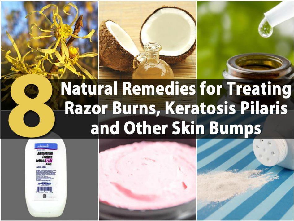 8 natürliche Heilmittel zur Behandlung von Rasur Verbrennungen, Keratosis Pilaris und andere Haut Beulen