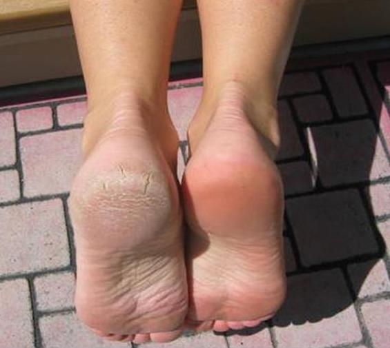 4 Effektive Home Remedies für Wunden, Cracked und Stinke Feet