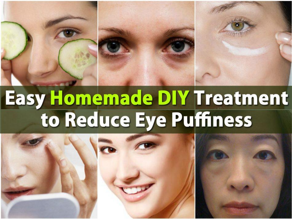 Einfache hausgemachte DIY-Behandlung zur Verringerung der Augenschwellung